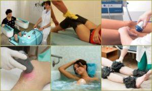 Физиотерапевтические процедуры и трудовая терапия при лечении ревматоидного артрита