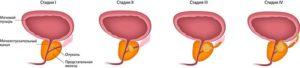 Как мне узнать, есть ли у меня рак предстательной железы?