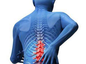 повреждение КСА спины
