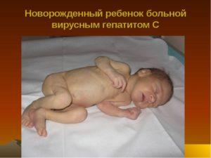 поствирусный синдром грудничка