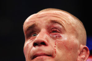 После драки у меня опухло левое лицо и глаз заплыл