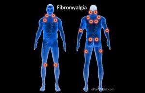 Как справиться с фибромиалгией в повседневной жизни?