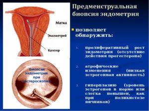 Не растёт эндометрий