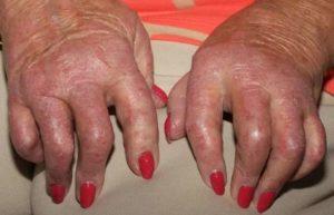 Симптомы болезни - боли в пальце