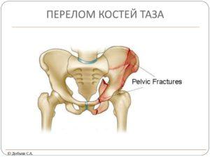 Повреждения костей таза