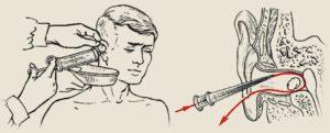 как правильно промыть ухо