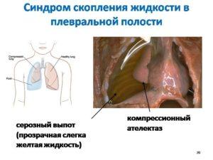 жидкость скапливается в плевральной области