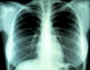 корни лёггих тяжистые.