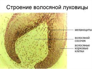 Как уничтожить волосяную луковицу