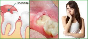 Болит зуб мудрости: что делать?