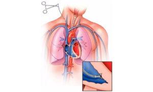 Биопсия сердца
