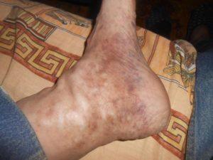 Почернела нога.