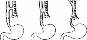Пищеводно-трахеальные свищи