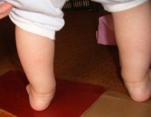 Ребенок неправильно ставит ногу.