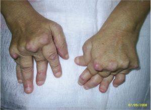 Ревматоидный артрит: когда необходима операция?