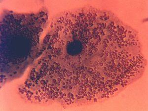 урео- и микоплазмы