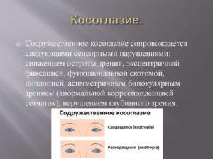Содружественное косоглазие (Strabismus concomitans, Heterotropia)
