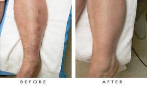 Варикоз (звездочки на ногах после родов к/с)