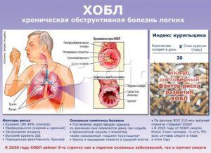 Хронические обструктивные болезни легких