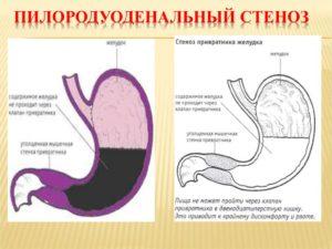 Пилородуоденальный стеноз