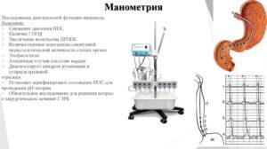 Пищеводная манометрия