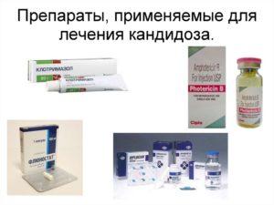 Лечение молочницы с помощью ароматерапии