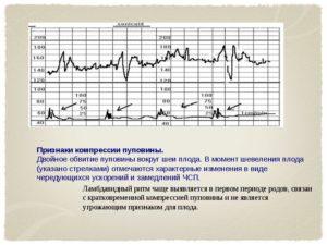 Особенности интерпретации данных КТГ в первом периоде родов