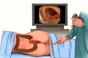 Ректороманоскопия при беременности