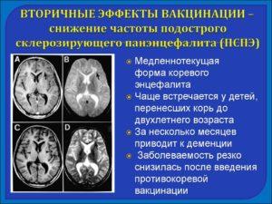 Семейство парамиксовирусов: Вирус подострого склерозирующего панэнцефалита (ПСПЭ)