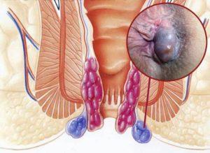 Возникновение геморроидальных узлов даже после обычного секса