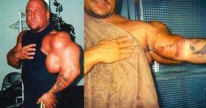 Рвутся мышцы