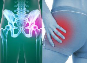 ЖЖение и боль в тазобедренном суставе