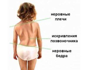 Деформация легкого у ребенка 6 лет