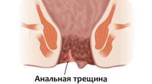 Анальная трещина (царапина)