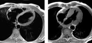 Компьютерная томография (КТ) сердца