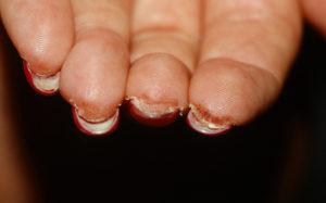 жидкость под ногтями