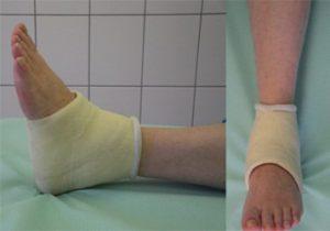 Упала на ногу в гипсе после перелома лодыжки (срочно, если возможно)