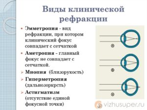 Рефракционные термины