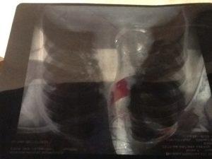 Расшифровка рентгена легких