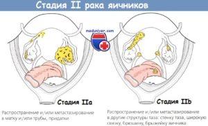 Стадия и степень рака яичников