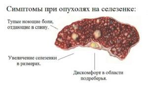 Симптомы болезни - боли в селезенке