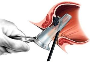 После геморроидэктомии образовались шишечка и два нароста