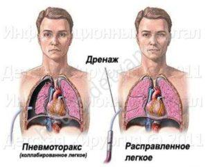 Дренажная трубка в лёгких
