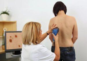 Обследование для выявления рака кожи