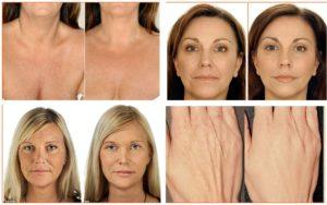 Гиалуроновая кислота и старение кожи