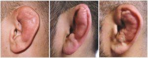Сломаны хрящи уха