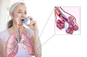 Заболевания, которые похожи на астму (подражатели астмы) (продолжение...)