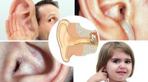 Болит ухо после высмаркивания
