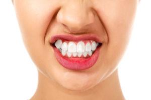 Скрежетание зубами (бруксизм)