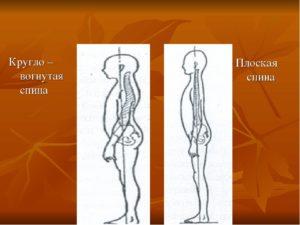 Кругло-вогнутая спина